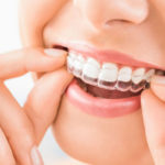 The Pros and Cons to Decide Between Invisalign and Braces
