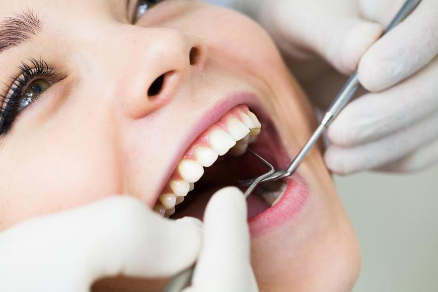 The-Scoop-Cavity-Fillings