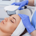 Laser Skin Treatment : Benefits You Need to Know